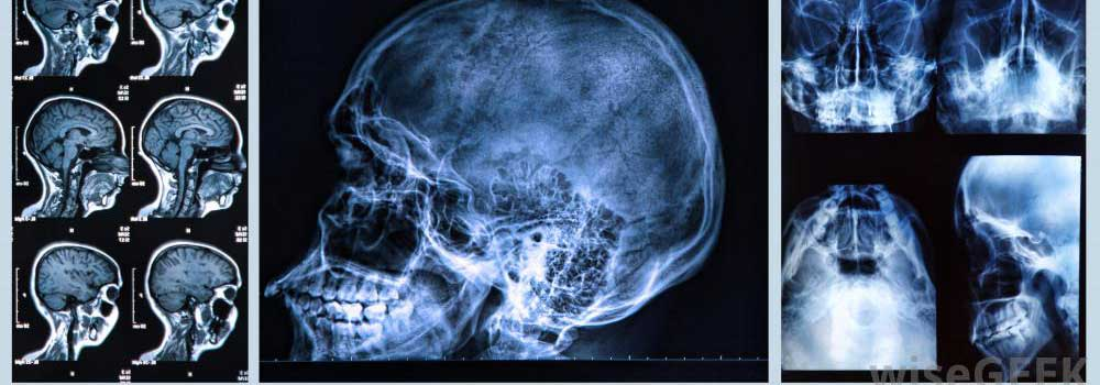 Medical-Imaging-on-HighQualityBlog